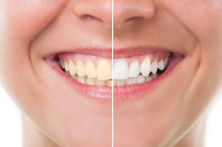 El Color natural de los dientes. ¿Por qué son blancos?